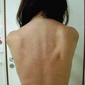 Postoperatieve kinesitherapie en revalidatie na de behandeling van borstkanker